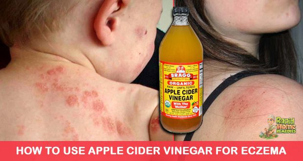 For itchy rashes take a bath and soak for 15 -20 minutes with ACV