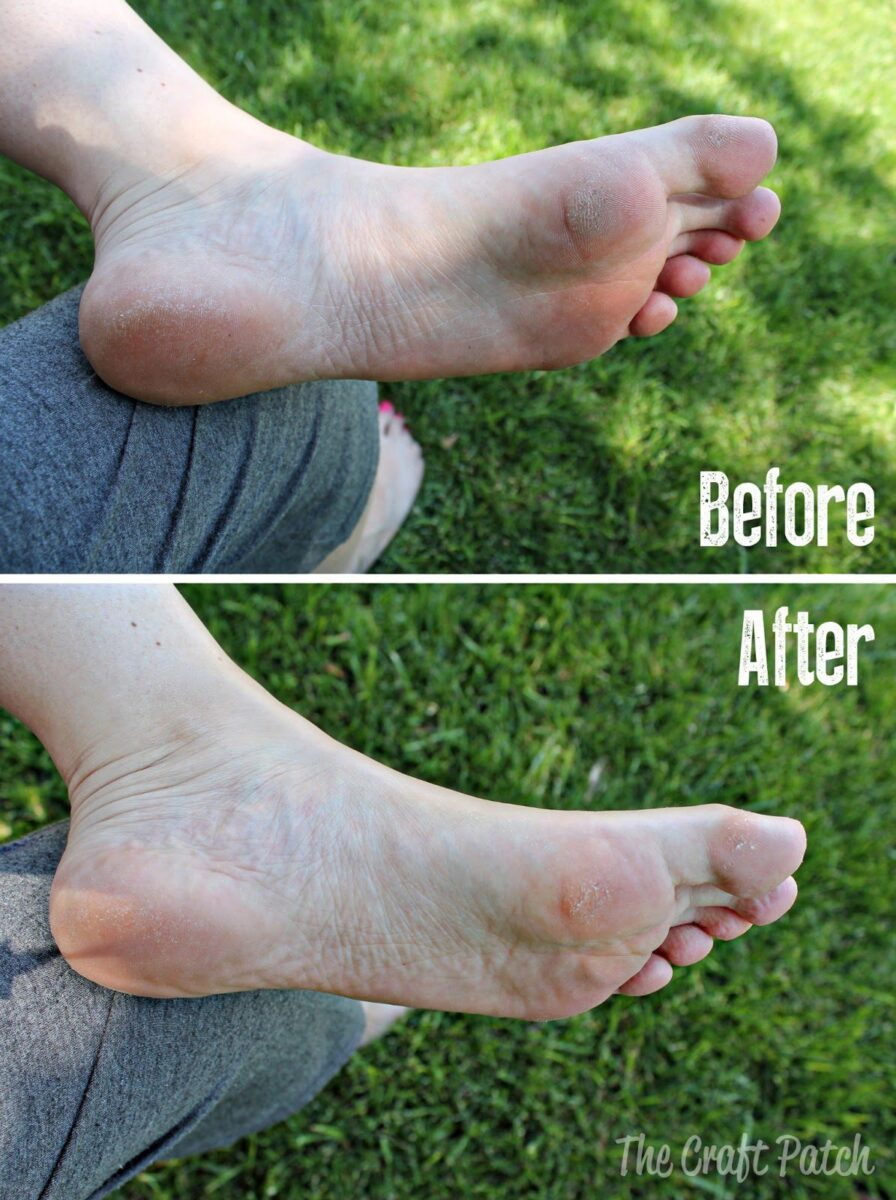 deborahlippman-beforeandafter-footesxfoliating-feet-exfoliate-softfeetforsummer