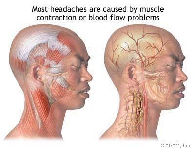 headaches-muscles-bloodvesslebloovesselconstrict-muscles-tightenedmuscles