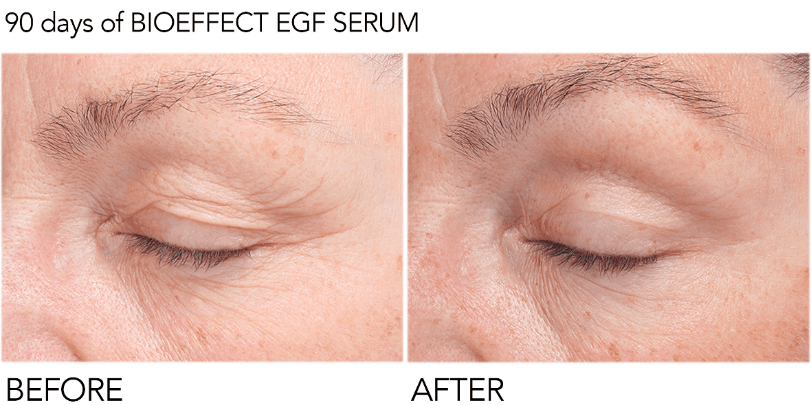 before and after being treated with EGF