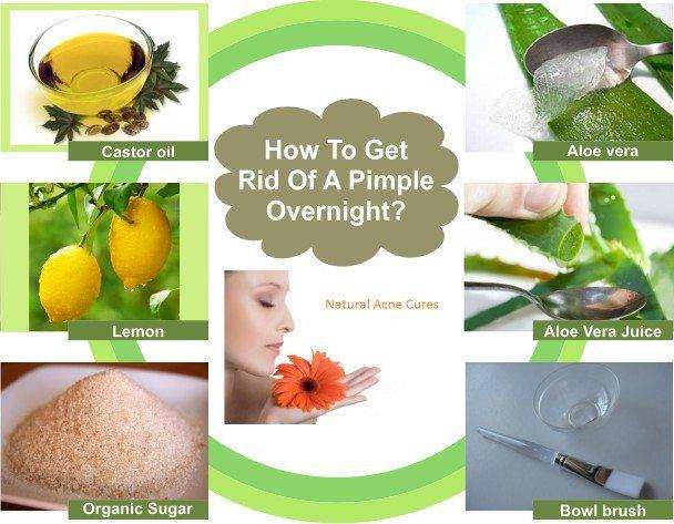 5adc0892-b9a7-4453-9ce2-416f83692a94-how-to-get-rid-of-a-pimple-overnight