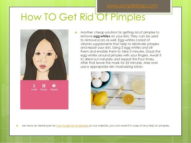 how-to-get-rid-of-pimples-fast-4-638