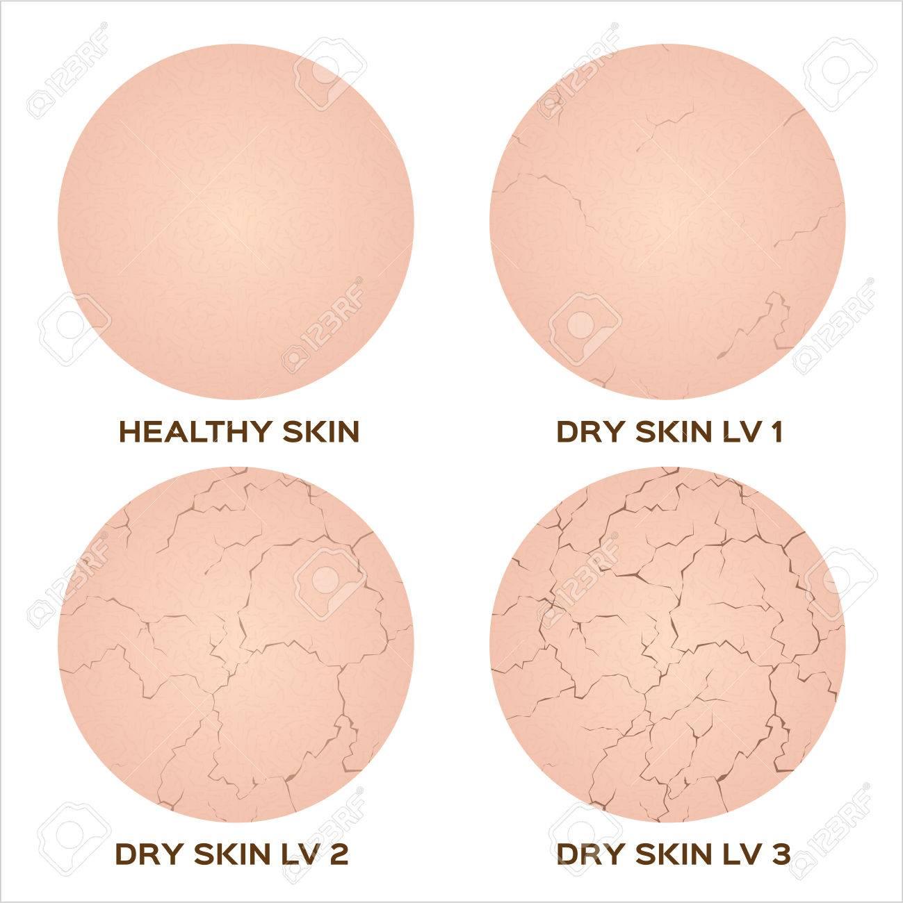 dry, drier, driest skin