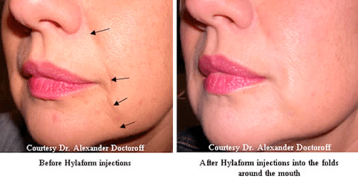 Hyaloronic-Acid-before-and-after-injections-in-face