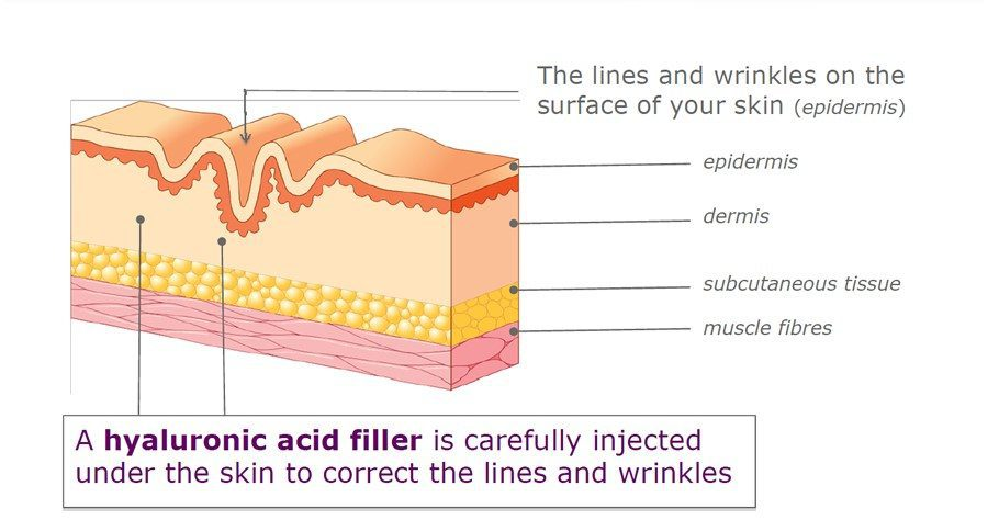Hyaloronic-acid-Uses-Of-Dermal-Fillers
