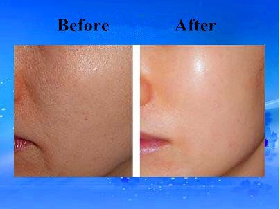 Hyaloronic-acid-injections-in-face-before-and-after