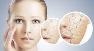 dry, flaky skin needs a moisturizer
