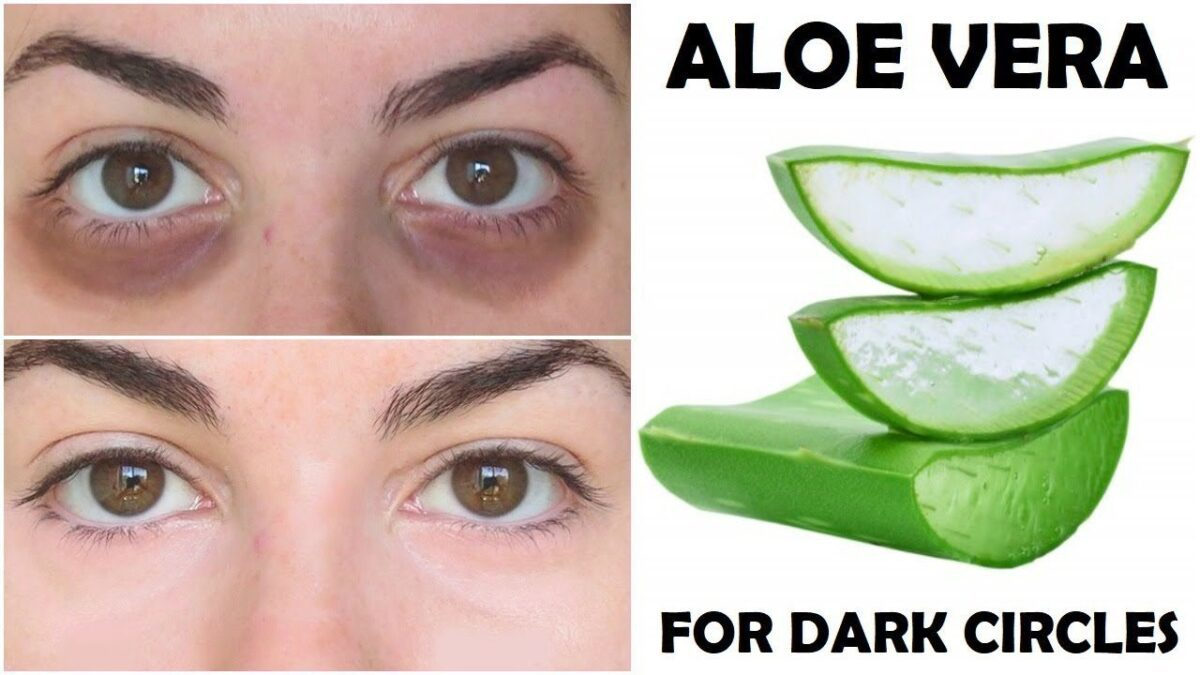 aloe vera for dark circles