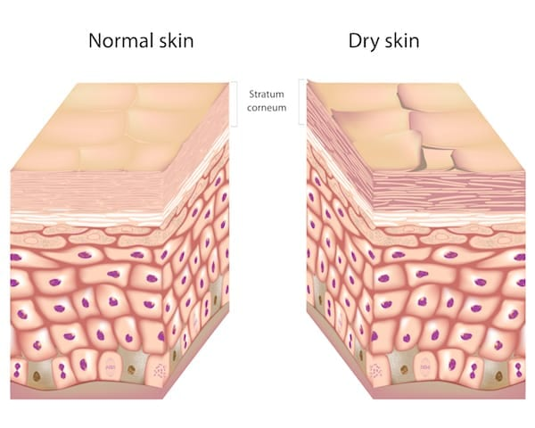moisturize flaky dry skin, do not exfoliate